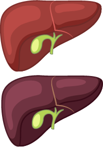 An illustration of a good and bad liver.